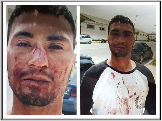 الواليدية:اعتداء على شخص من طرف خليفة قائد و الاصابة بليغة في الأنف